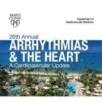 logo Arrhythmias and the Heart: A Cardiovascular Update